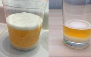 Признаки зачатия мальчика на ранних сроках. Домашний тест с содой. Методы диагностики беременности