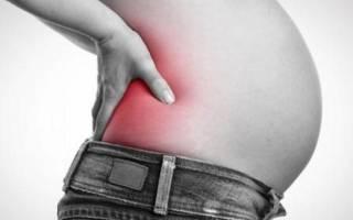 Почему у беременных болит спина и насколько это опасно? Причины боли в пояснице при беременности и методы ее лечения