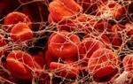 Уровень тромбоцитов у беременных норма. Уменьшение количества тромбоцитов. Народные способы повышения тромбоцитов