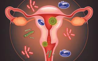 Чем лечить молочницу беременным. Факторы, провоцирующие заболевание