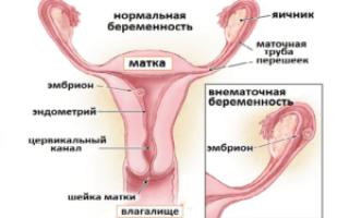 Внематочная беременность: психосоматика и ментальные причины патологии. Эрозия шейки матки. В чем заключаются психологические причины внематочной беременности