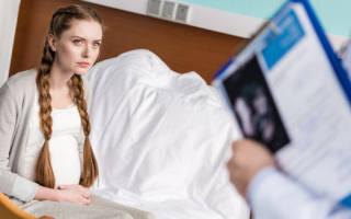 Особенности лечения пиелонефрита при беременности. Гестационный пиелонефрит у беременных
