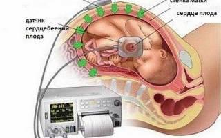 Нормы сердцебиения у плода при беременности. Какой аппарат используют для прослушивания сердцебиения у плода