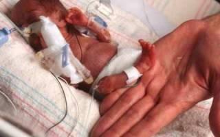 При угрожающих преждевременных родах применяют. Причины и симптомы преждевременных родов, отличия от выкидыша, действия при угрозе раннего родоразрешения и профилактика. Лечение, направленное на сохранение беременности